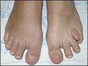 Short Toe (Metatarsal)