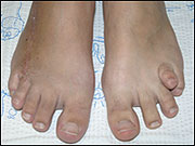 Short Toe (Metatarsal)