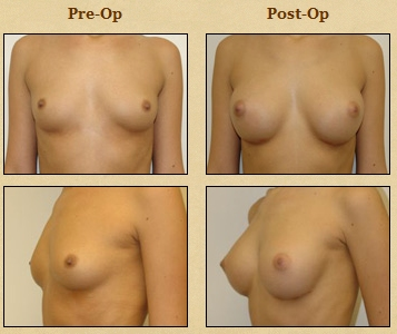 Breast Augmentation - 1