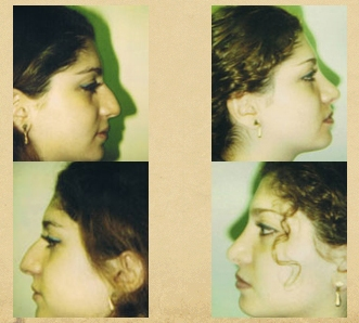 Rhinoplasty / Nose Reshaping / Nose Job