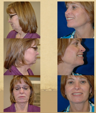 Face Lift / Eyelid Lifts / Rhytidectomy